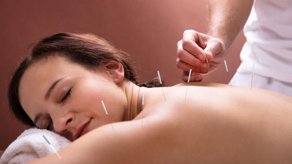 Une dame recevant un soin d'acupuncture.
